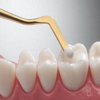 نانوکامپوزیتهای دندان