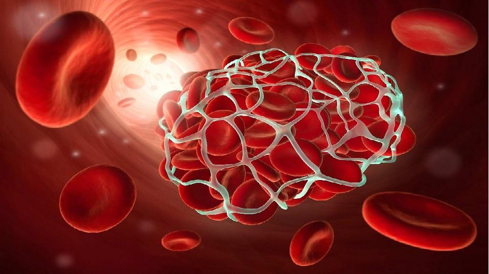 بندآوردن خون با مایع شفاف حاوی نانوالیاف
