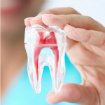 بهبود مواد ترمیمی دندان با استفاده از فناوری نانو